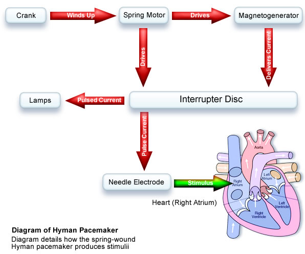 Basic functional mechanisms to the Hyman pacemaker.