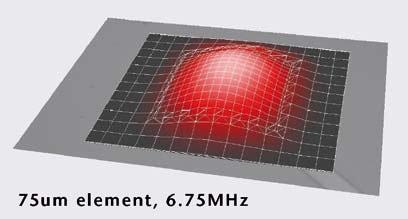 Vibration of a 75 µm pMUT element at 6.75 MHz in a 14x14 2-D pMUT array.