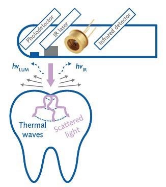 Infrared detector applied to early detection of tooth decay.