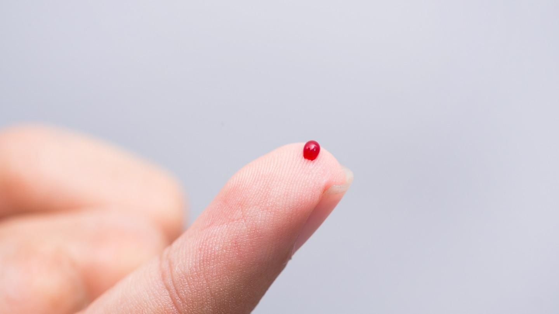 Novel Microchip Sensor Measures Stress Hormones in Real-Time.