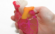 A Heart-Breast Cancer-on-a-Chip Platform for Monitoring Cardiotoxicity