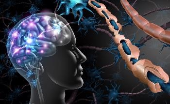The Role of Wearable Sensors in the Early Stages of Multiple Sclerosis